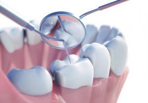 stomatologia-zachowawcza2
