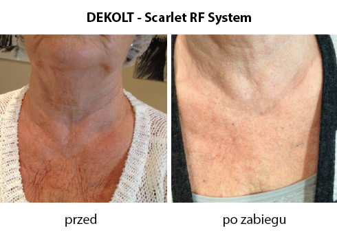 dekolt-scarlet-RF-system