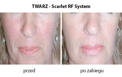 twarz-2-scarlet-RF-system