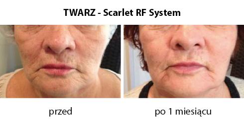 twarz-scarlet-RF-system