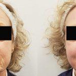 Nucleofill przed i po
