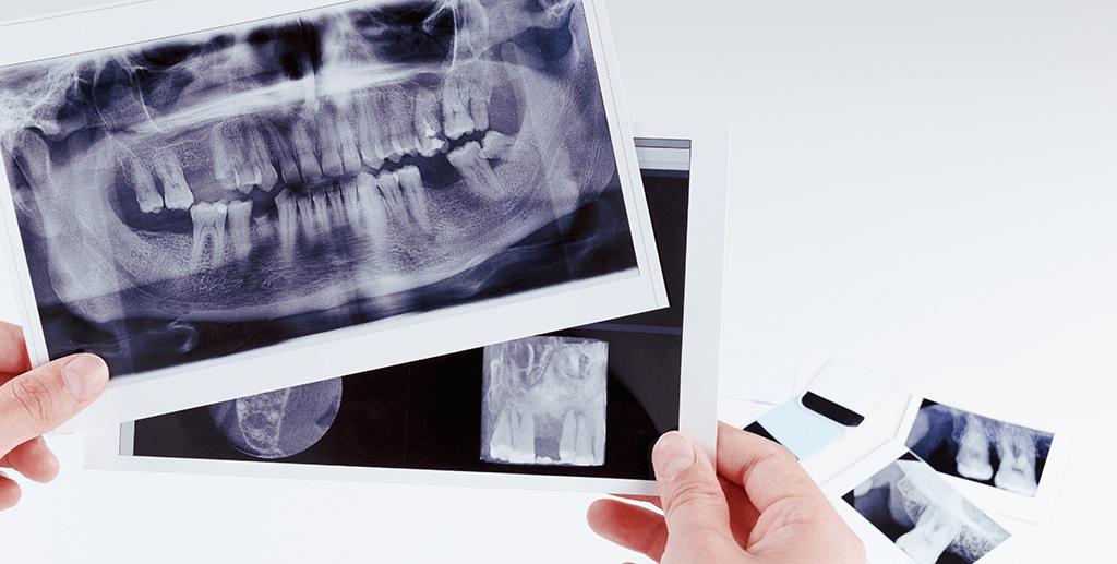 RTG zębów to zabieg radiologii cyfrowej stosowany w diagnostyce zębów w JB Clinic w Zielonej Góze